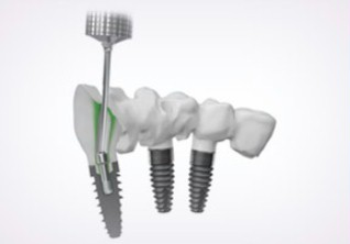 Optimale Positionierung des Implantats durch cara I-Bridge® angled.
